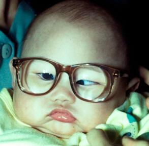 【香港信报】儿童白内障:适时摘除及植入人工晶体在囊袋