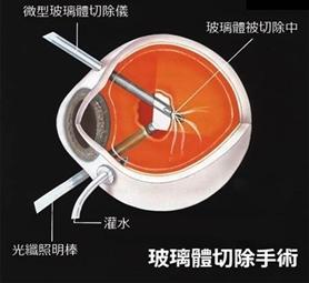 视网膜脱落还能看见吗