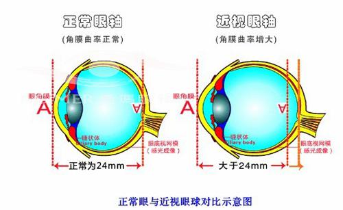 假性近视矫正治疗仪电路图