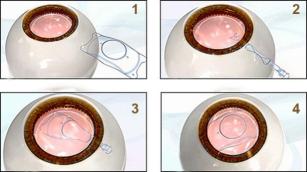 患者:角膜过薄是否能做激光近视手术