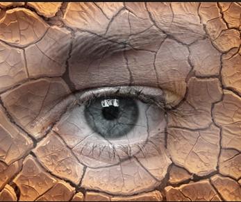 """干眼症朋友看过来,勤""""眨眼""""可防止眼睛干燥"""