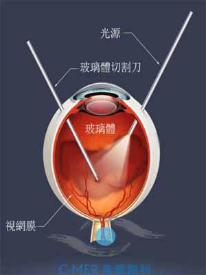 做视网膜脱落手术前的准备